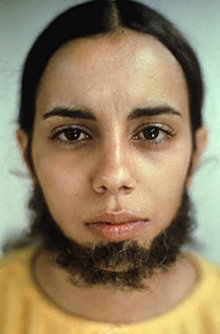 Ana_Mendieta_Untitled_(Facial_Hair_Transplants)_1972